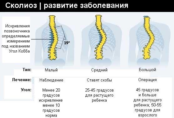Инфографик: сколиоз развитие заболевания