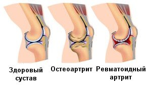 Типы артрита