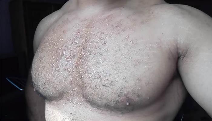 акне на груди от стероидов