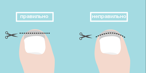 правильное обрезание ногтей