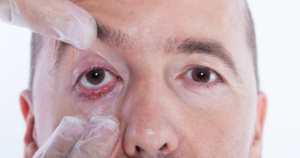 Не игнорируйте воспаление глаз