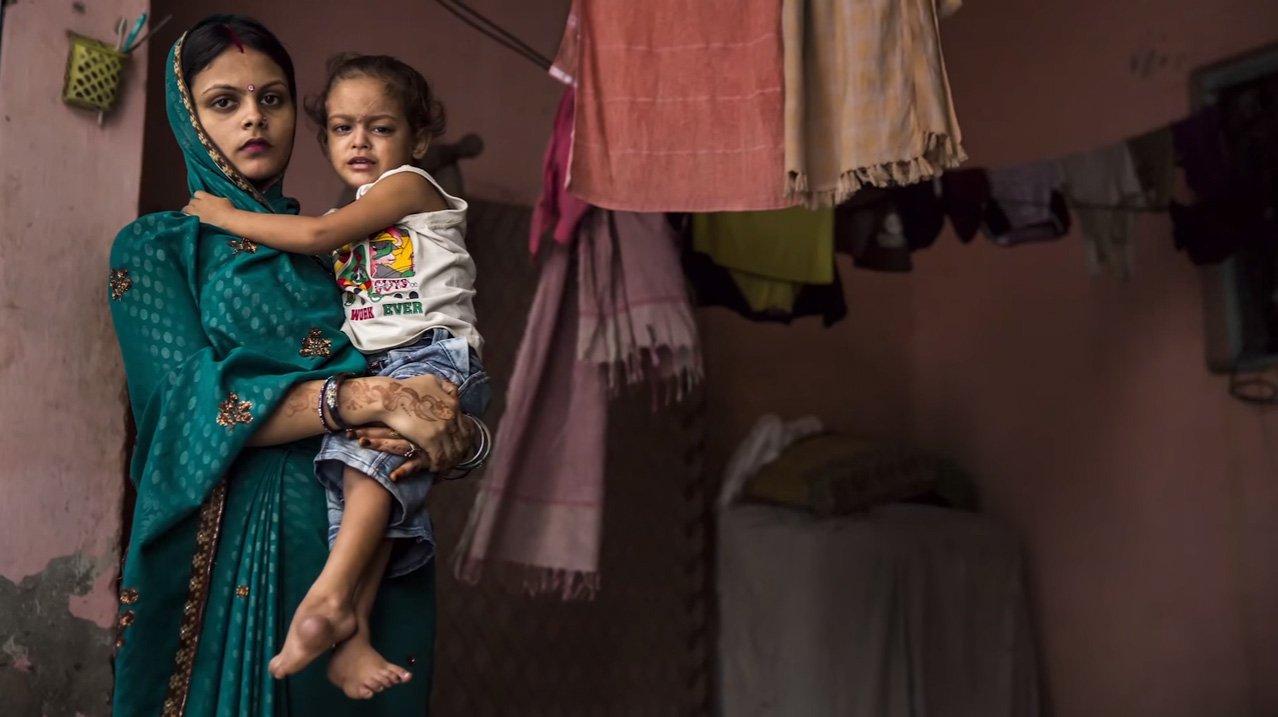 индийский ребенок с плоскостопием