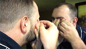 мужчина прокалывает ячмень на глазу