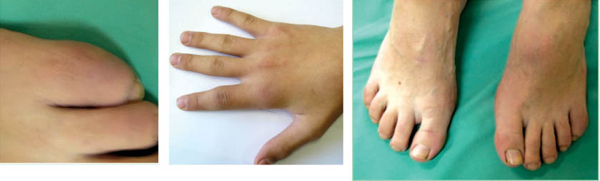 суставы пальцев