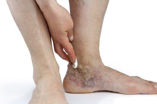 больная нога