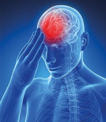 профилактика острой мигрени