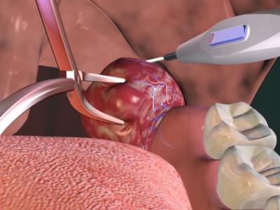 операция при тонзиллите