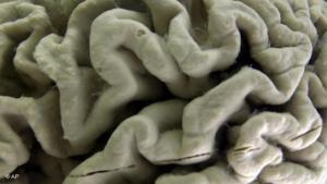 Новый препарат бороться с белковыми отложениями в мозге