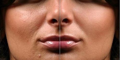 Фото «до» и «после» фотоомоложения