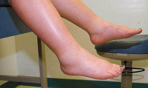 Как бороться с задержкой жидкости в ногах