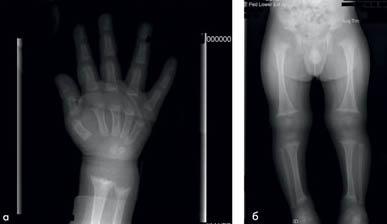 рентгеноснимок пациента с рахитом