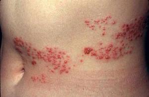 Опоясывающий герпес гладкой кожи