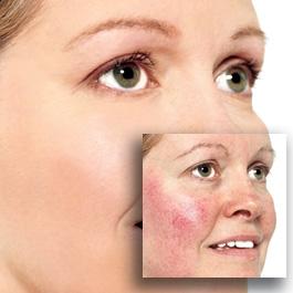 распространенные заболевания кожи
