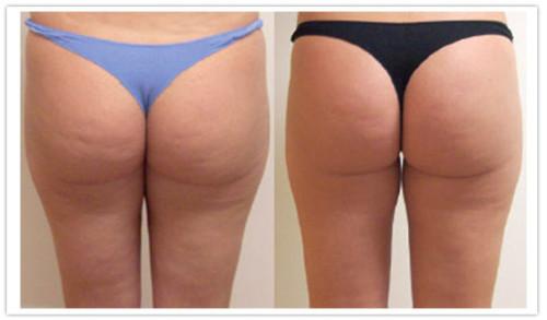 до и после лимфодренажного массажа
