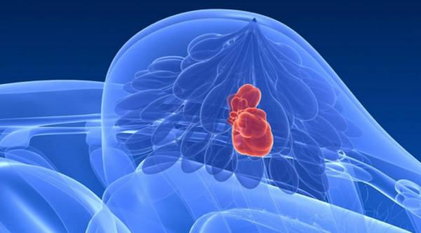Обнаружение рака молочной железы в помощью УЗИ