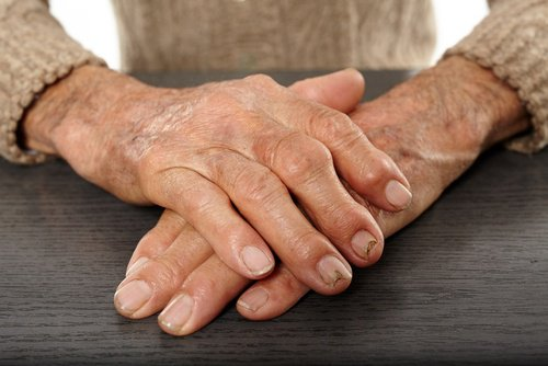 набухшие суставы пальцев