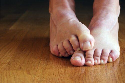 борьба с грибком ног