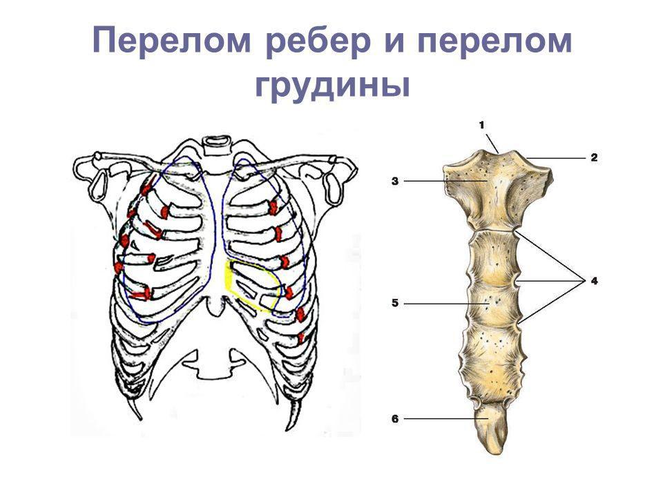 Схематичное изображение перелома ребер и грудины