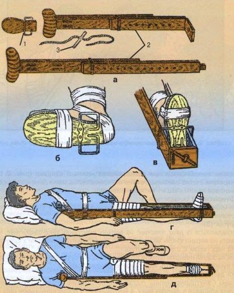 Методика применения шины Дитерихса