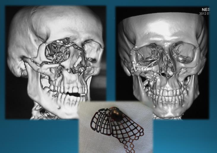 Травмы лицевого черепа
