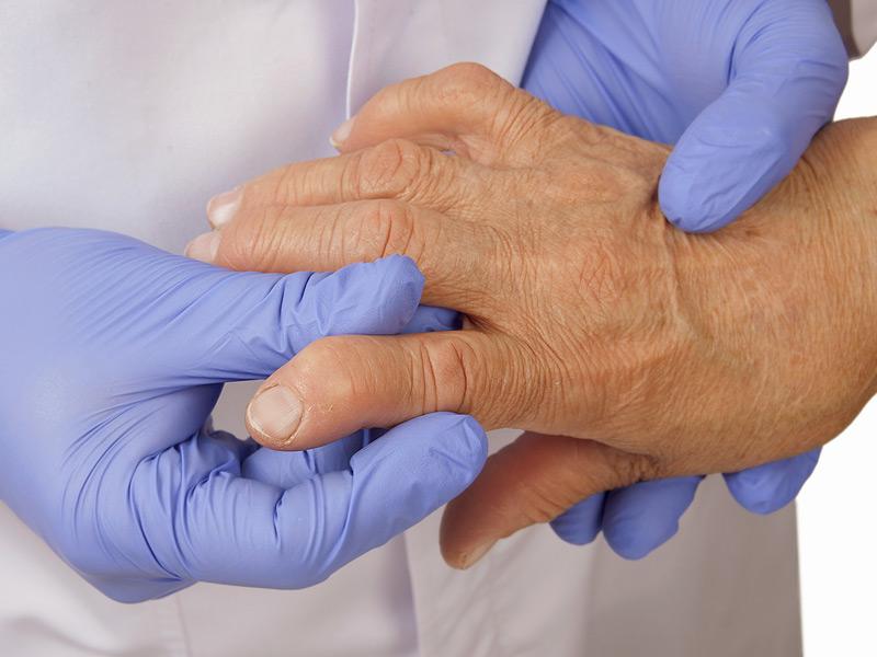 артрит в сочетании с артериальной гипертензией