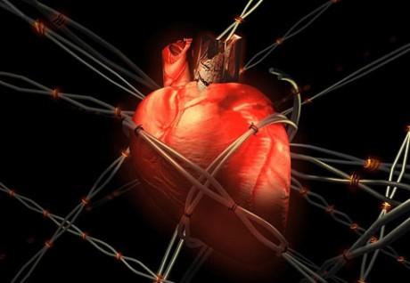 кардиоваскулярная недостаточность