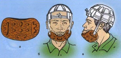 иммобилизация при повреждениях нижней челюсти