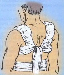 иммобилизация при травмах ключицы