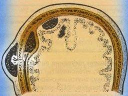 локализация внутречерепных гематом