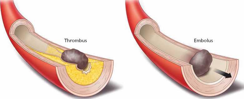 закупоривание артерий