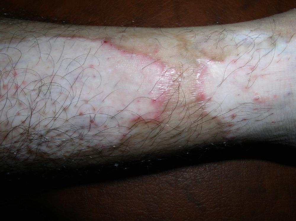 Воспалительный витилиго