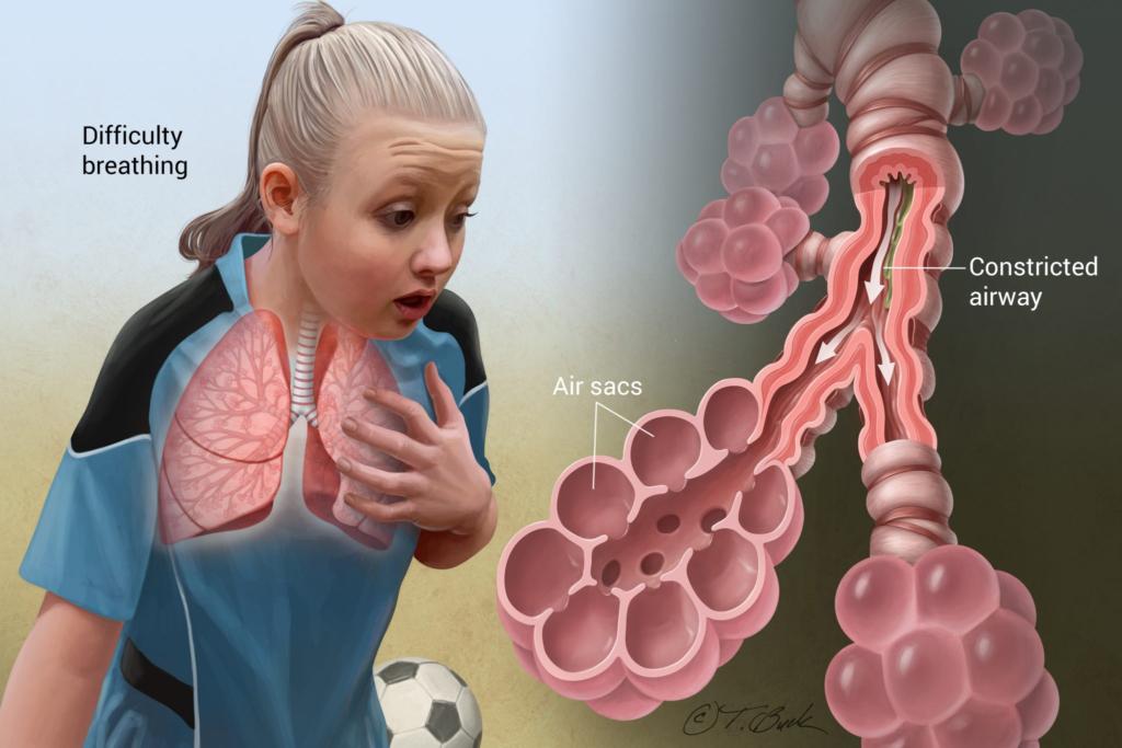 бронхиальная астма у детей и трудно дышать