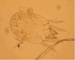 Клещ семьи Pyroglyphidae