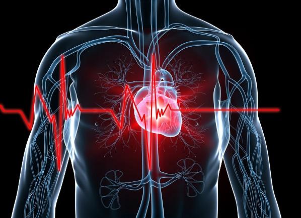 высокий риск инфаркта