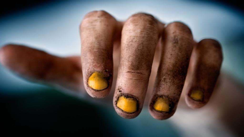ногти курильщика
