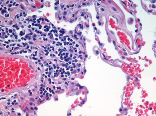 Микроскопический вид гистологического образца человеческой легочной ткани