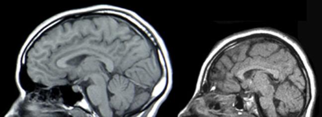 Сравнение МРТ здорового человека (слева) и микроцефала с мутацией