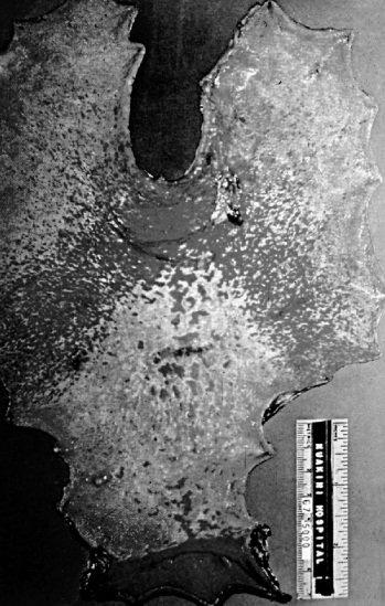 Фотография гастрэктомического образца