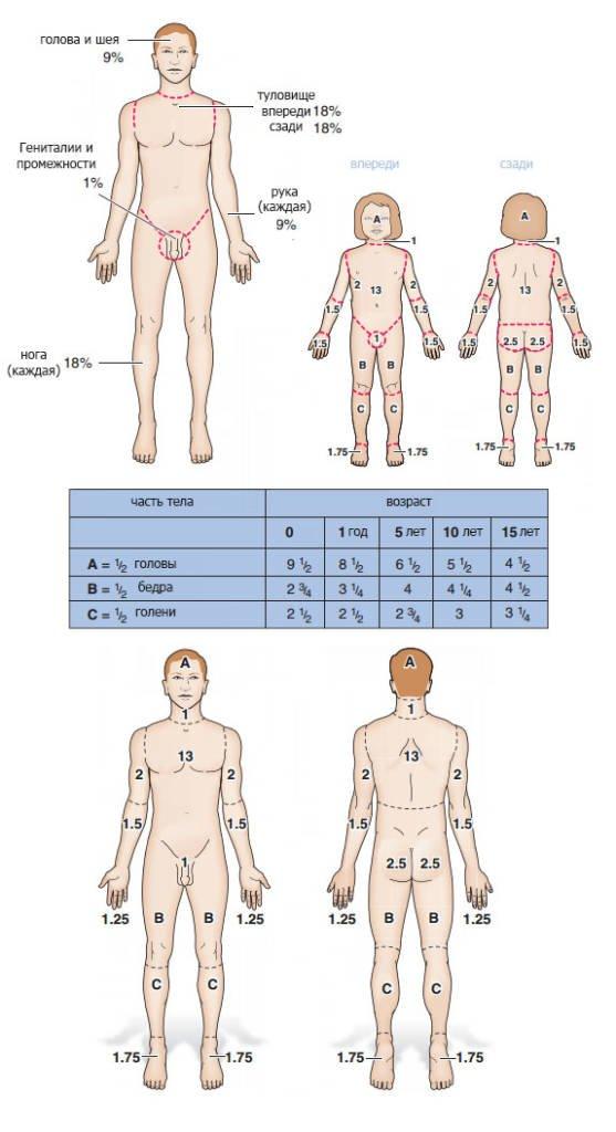 Таблица для оценки ожогов у взрослых и детей