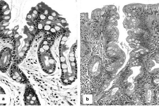 Желудочная кишечная метаплазия