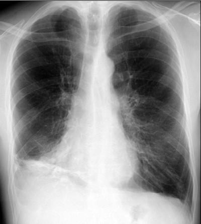 Аллергический бронхолегочный аспергиллез 1