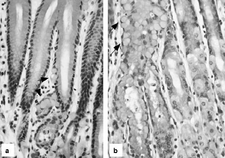 микрофотография слизистой оболочки желудка