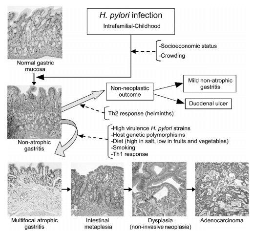 модель канцерогенеза желудка