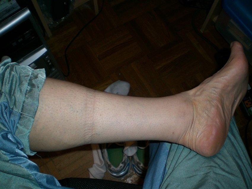 Задержка жидкости и отеки в ногах
