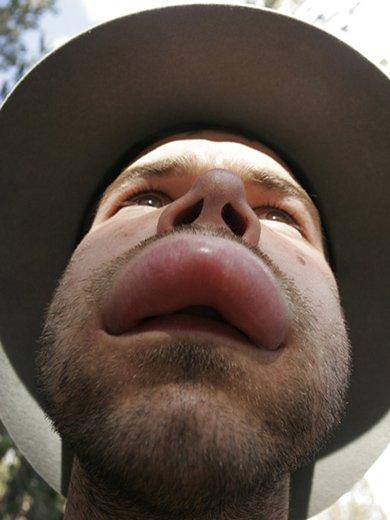 аллергия на ос распухла губа