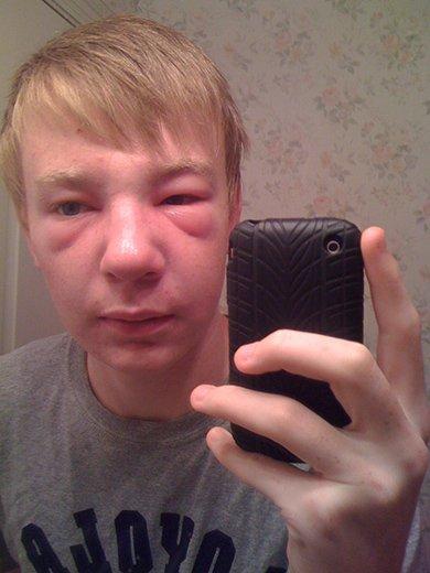 аллергия на ос у парня