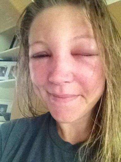 аллергия на ос у женщины