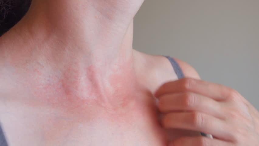 Аллергическая реакция на укус