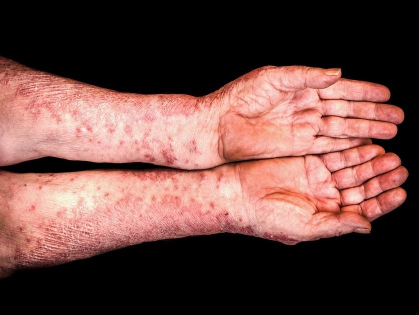 сыпь на руках при кори