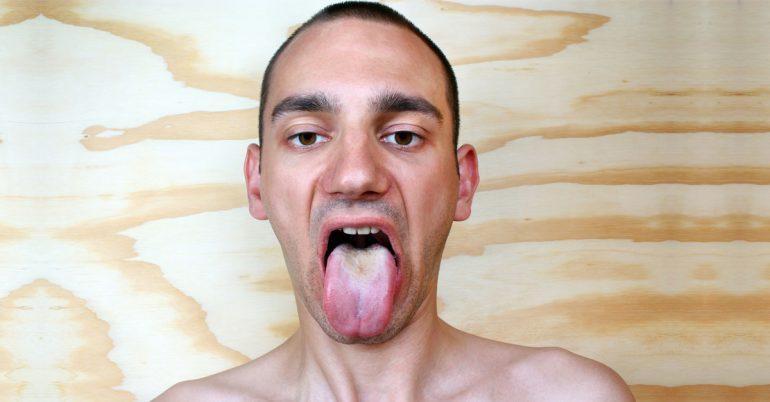Припухлости языка